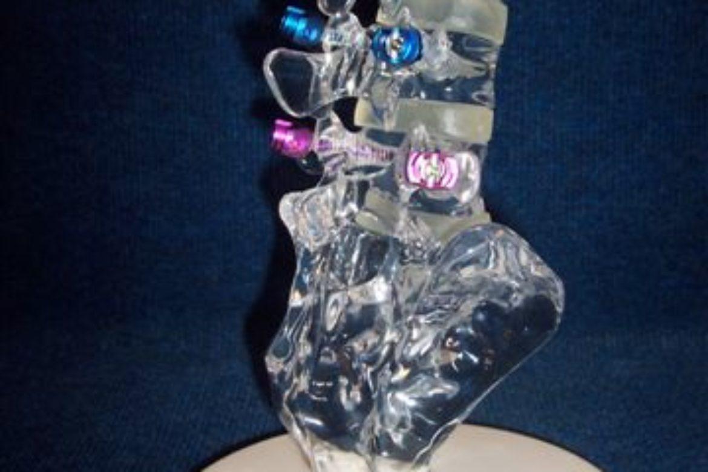 lumbar spine3